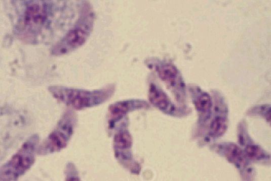 猪感染弓形虫病的症状是怎么样的? 详解预防治疗措施