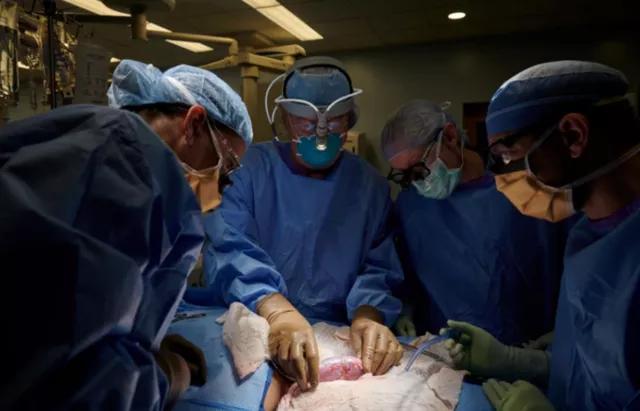 突破!把猪的肾脏移植给人,美国医生成功了,但却只维持了3天!